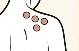 Thạch cao có màu be hòa quyện với da